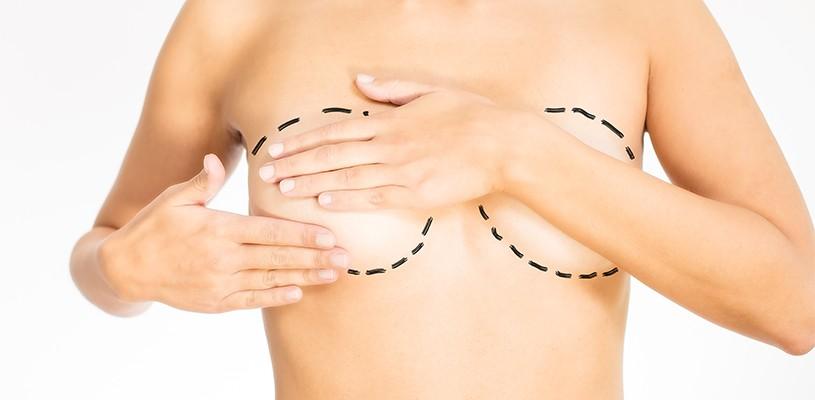 Göğüs Estetiği