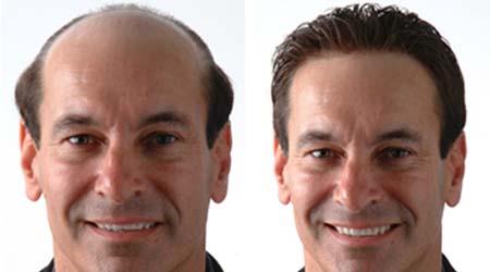Gittikçe azalan saçlarınıza tabi ki bir çözüm de bizden!