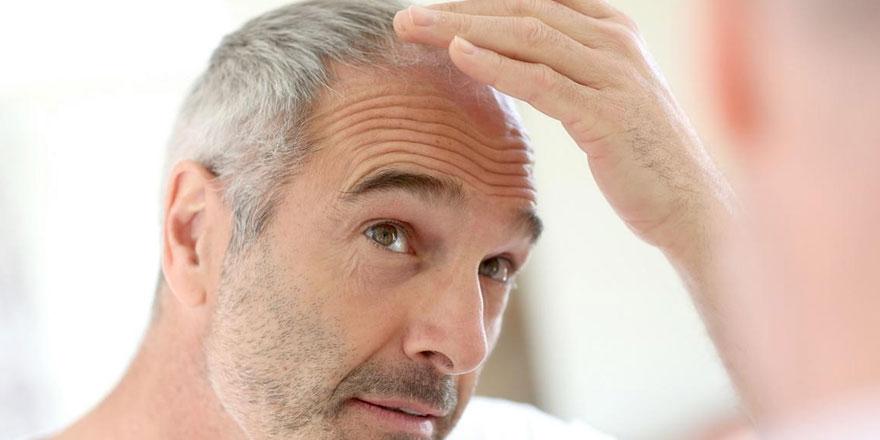 Yaz Mevsiminde Saç Ekimi Yapılabilir mi?
