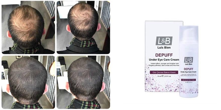Saçları Daha Dolgun Göstermek Mümkün
