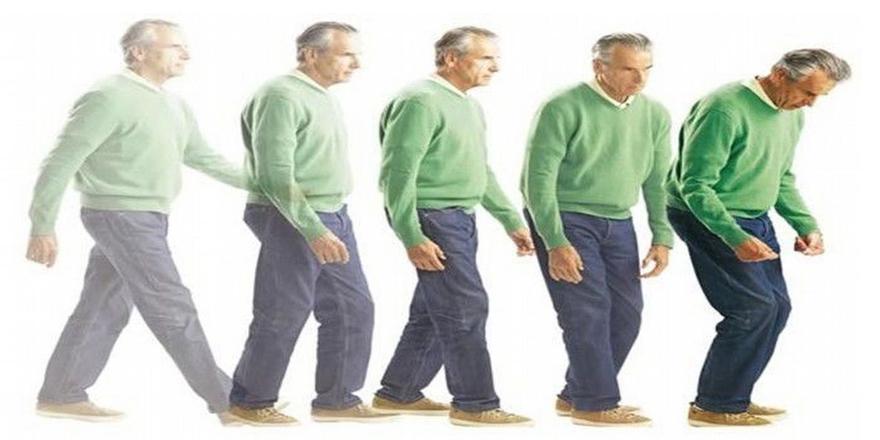 Parkinson Plus Nedir?