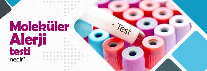 Moleküler Alerji Testi Nedir?