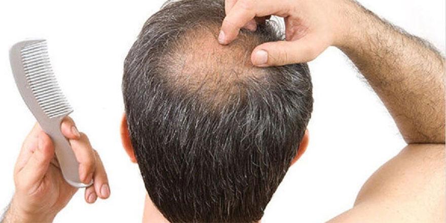Saçını Güçlendirmek İsteyenlere Bioxcin