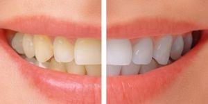 Doğal Bir Konuşma İçin Porselen Diş Kaplama Ataşehir
