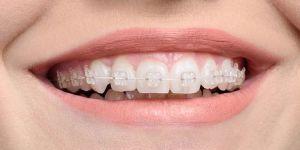 Diş Telleri Hakkında Merak Ettikleriniz
