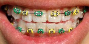 Diş Hekimliğinde Modern Çözümler