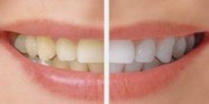 Diş Kliniğinde Kaliteli Hizmetler